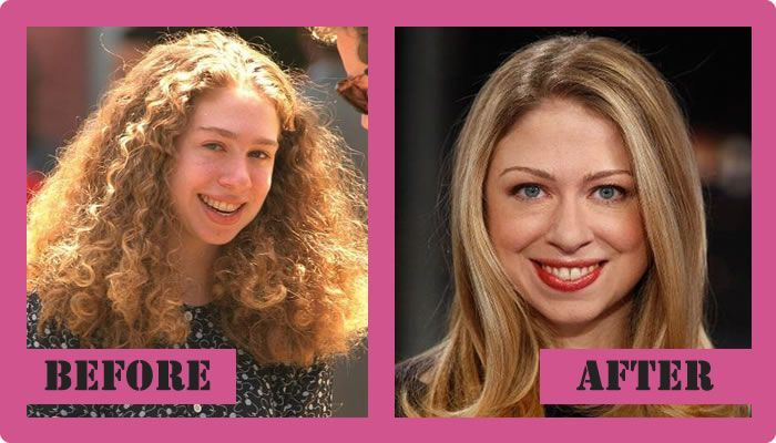 Chelsea Clinton Plastic Surgery Before And After Chelsea