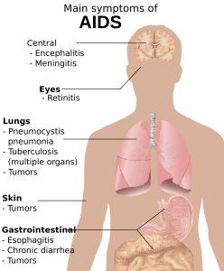 2000px-Symptoms_of_AIDS.svg