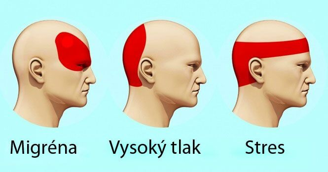 bolesti_hlavy_main
