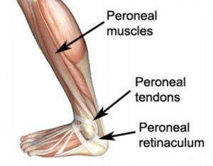 Medical Mater, Ankle Diagnosis, Humpty Dumpty, Ankle Tendonitis, Feet ...