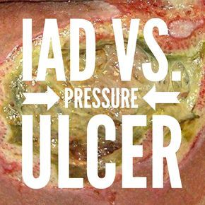 Will the Real Pressure Ulcer Please Stand Up? How to know the difference between Incontinence Associated Dermatitis (IAD) and pressure ulcers. via @woundcareeducat