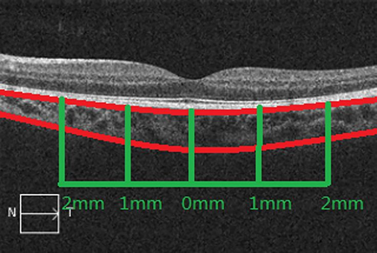 Official Full-Text Paper (PDF): Assessment of Retinal and Choroidal Measurements in Chinese School-Age Children with Cirrus-HD Optical Coherence Tomography
