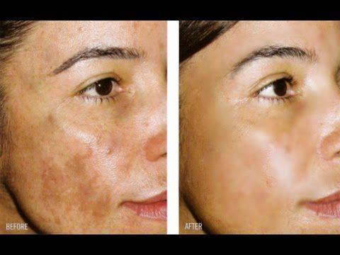Crema Para Quitar Manchas Oscuras: HIDROQUINONA / Hydroquinone For Skin Lightening - YouTube