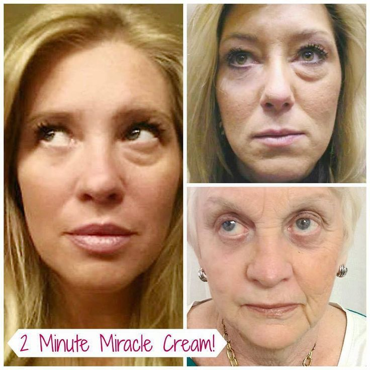 Are you ready to see something AMAZING?  Watch this video and see Instantly Ageless working within minutes: http://www.2minuteskinmiracle.com/  Instantly Ageless is new and as you can imagine, people are going CRAZY for it! So many of us thought we were stuck with the dark circles and puffy eyes forever! Now there is help – and it's fast – and it works!  Incredible opportunity.  Order or join here: www.agelesswithsuzy.jeunesseglobal.com #canada #ageing #darkcircles #beauty