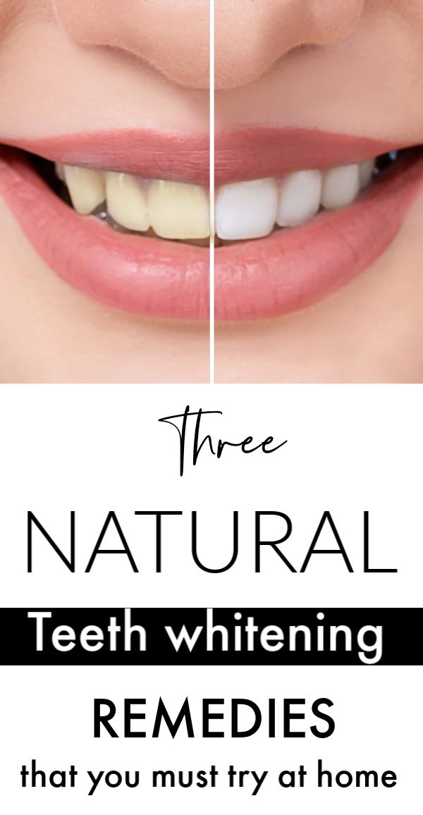 3 Natural Teeth Whitening Remedies
