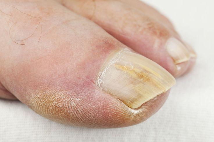 L'infezione fungina all'unghia del piede appare come una macchia bianca o giallastra, apparentemente innocua, che diventa con il tempo più scura e spessa.
