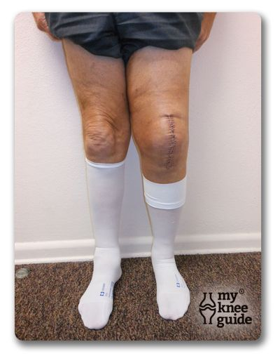 Blood Clots Also Known As A Dvt Stockings Posts And Blood