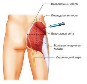 Как правильно делать инъекции? Сохраните себе эту важную информацию! | Новости | Всеукраинская ассоциация пенсионеров