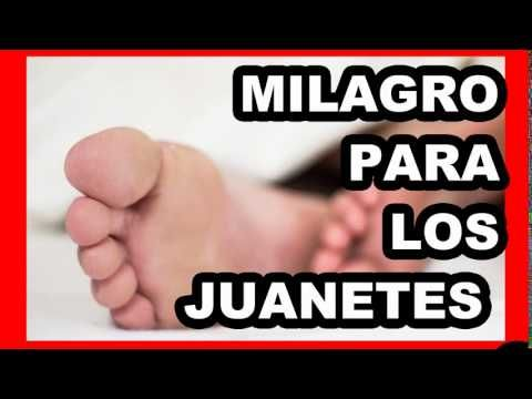 MEDICOS ASOMBRADOS! CÓMO ELIMINAR JUANETES, INFLAMACIÓN ARTICULAR DE LOS PIES CON REMEDIO CASERO - YouTube
