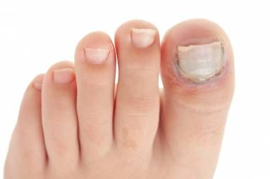 Inilah Cara Ampuh Obati Cantengen dan Kuku Bernanah    Kuku cantengan atau kuku bernanah, disebut juga Paronychia yaitu infeksi kulit, umumnya terjadi di dasar kuku jari tangan atau jari kaki. Dapat terjadi umumnya dikarenakan oleh gigitan serangga, kebiasaan menggigit kuku, hingga terjadi infeksi oleh jamur, bakteri, dsb. Tips menangani kuku...  Sumber : http://www.kioopo.com/inilah-cara-ampuh-obati-cantengen-dan-kuku-bernanah-5259?utm_source=PN&utm_medium=pinterest&utm_