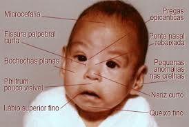 sindrome alcoolica fetal - Pesquisa Google