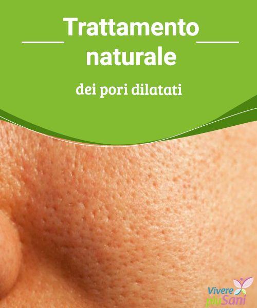 Trattamento naturale dei pori dilatati   Trattamenti naturali per ridurre i pori dilatati sul viso con la pelle grassa