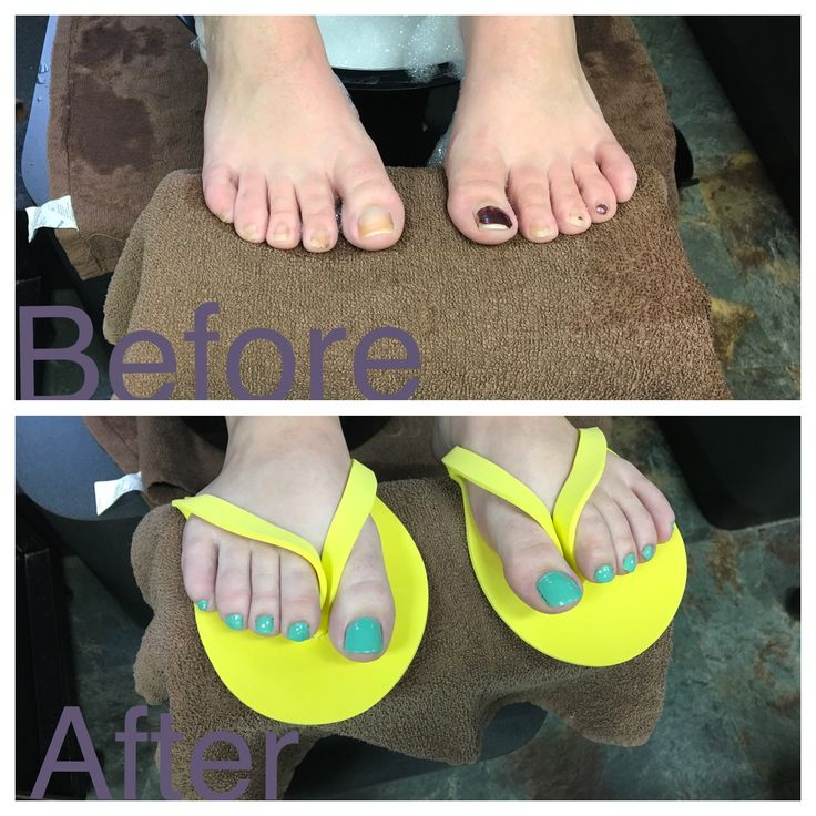 First pedicure before and after. A beautiful turquoise ...