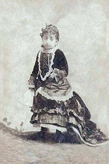 """Miss Lucia Zarate b.1864 Mexico ~ The smallest human being ever known. The first person to have been identified with Majewski Osteodysplastic-Primordial Dwarfism Type II. Entered into the Guinness World Records as the """"lightest recorded adult"""" at 4.7 pounds at age 17. Achieved her full growth at age 1 year. Worked as part of an act billed as the """"Fairy Sisters"""". When her circus train became stranded in snow in the Sierra Nevada mountains in 1890, Lucia died of hypothermia."""