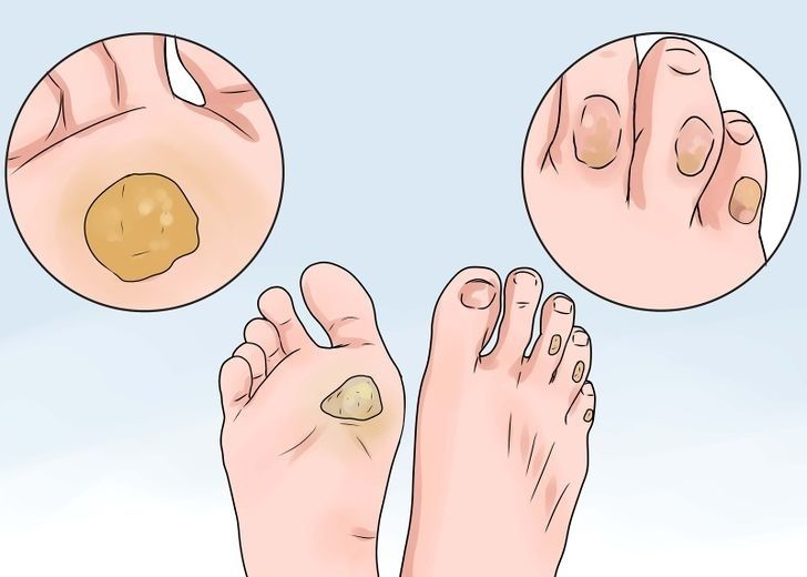 A tyúkszem a lábujjakon és a talpon is kialakulhat, ez gyakorlatilag egy makacs bőrkeményedés. Fiataloknál és idősebbeknél is előfordulhat, mivel általában a kényelmetlen cipő okozza.[...]