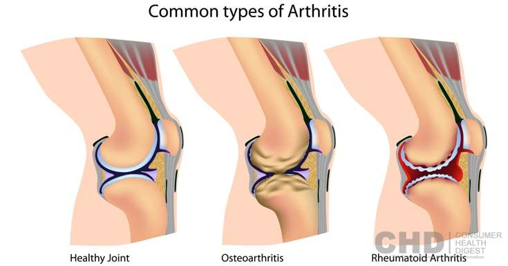 Here you will learn the most common types of #arthritis, including osteoarthritis, rheumatoid arthritis, and psoriatic arthritis.
