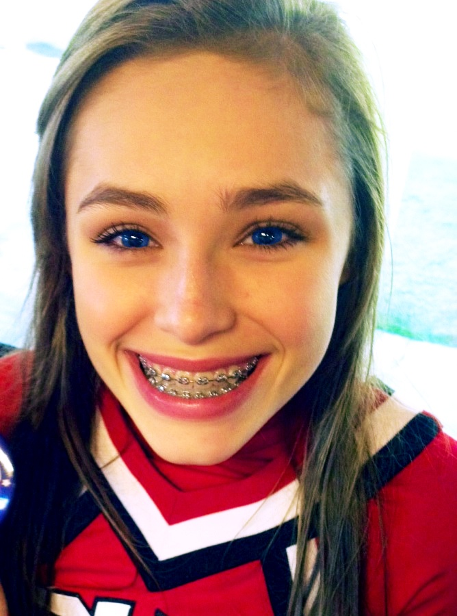 204 Best Images About Wearing Braces  On Pinterest  Gwen -8239