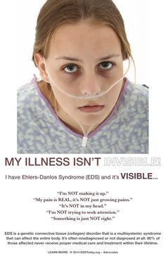 Chronic Venous Insufficiency Ehlers Danlos Syndrome - Yahoo Image Search Results
