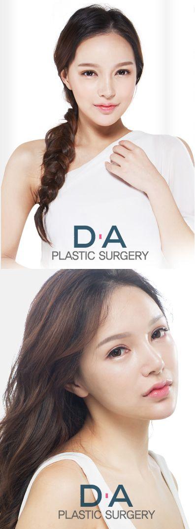 DA Rhinoplasty For more info: en.daprs.com Make a reseration/Enquiries: info-en@daprs.com  #PlasticSurgery #DAPRS #DAPlasticSurgery #Rhinoplasty #NoseSurgery #NoseJob #Korea #PlasticSurgeryInKorea #KoreanBeauty #KoreanPlasticSurgery #GangnamPlasticSurgery #Pretty #CosmeticSurgery #Beauty