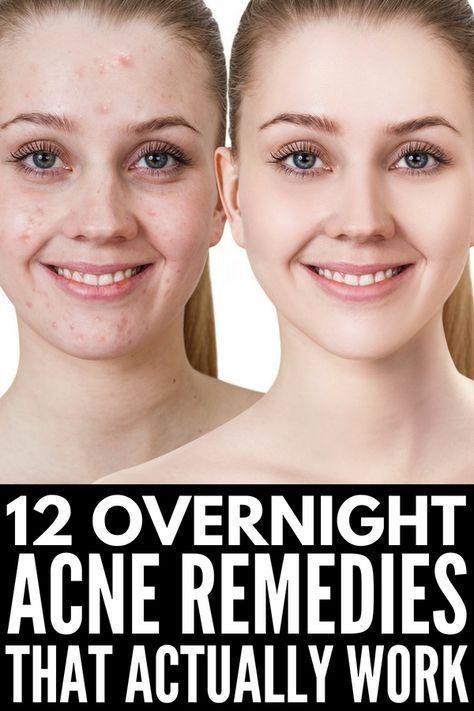 Get rid of bad acne overnight