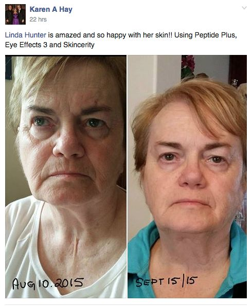 Amazing results with the Hydrating Trio: Skincerity + Eye Effects 3 + Peptide Plus