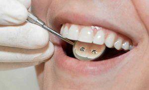 Triunfan los brackets invisibles Los únicos que hasta hace pocos años llevaban aparatos en la boca, esa especie de hierros que ahora se conocen por su nombre en inglés, los 'brackets', eran los niños. Pero esa es una imagen que ya pertenece al pasado. Los odontólogos han descubierto que la ortodoncia, como se denomina la técnica, no sólo permite enderezar dentaduras en desarrollo, como las de los críos, sino que también sirve para mejorar la sonrisa de los adultos.