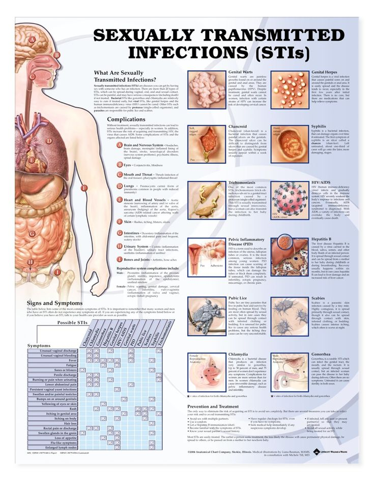 Enfermedades de transmisión sexual | Sexually Transmitted Infections (STIs) Chart - Sexual Health Poster - MedicPrint