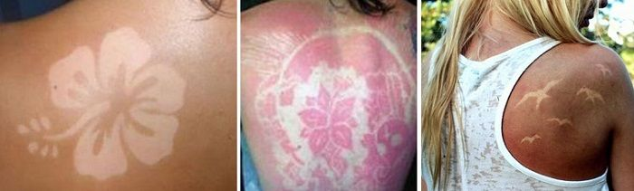 Sunburn Art La peligrosa moda de Tatuajes Solares -