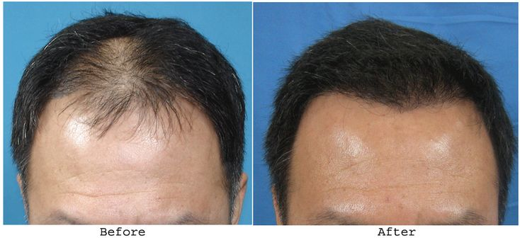 If you have any type of problem of hair fall then you can visit on hair