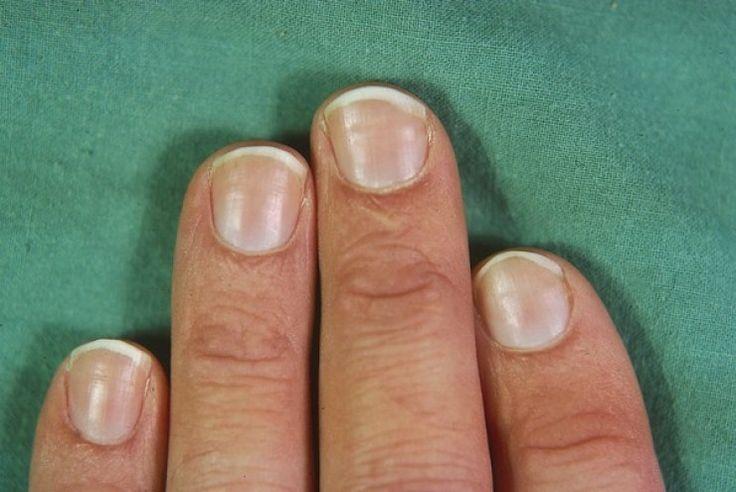 Horizontal Ridges On Fingernails