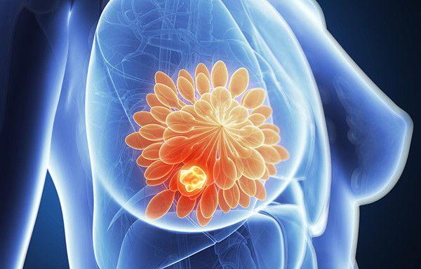 Η Κλινική Μαστού του Ιατρικού Κέντρου μέλος του «Breast Centers Network»