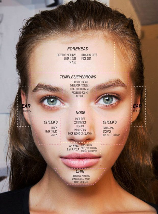Face Mapping Your Acne: What Your Breakouts May Be Telling You    More tips here: http://beautyluxelife.com/how-to-treat-and-prevent-acne/