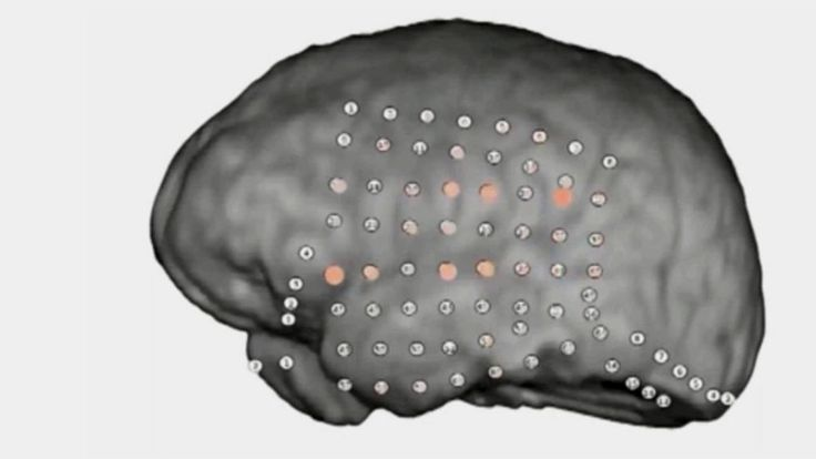 Direct recordings have revealed what happens in our brains as we make sense of speech in a noisy environment, scientists say.
