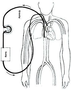 In intensive care medicine, extracorporeal membrane oxygenation (ECMO) is an extracorporeal technique of providing both cardiac and respiratory support oxygen to patients whose heart and lungs are so severely diseased or damaged that they can no longer serve their function. Initial cannulation of a patient receiving ECMO is performed by a surgeon a