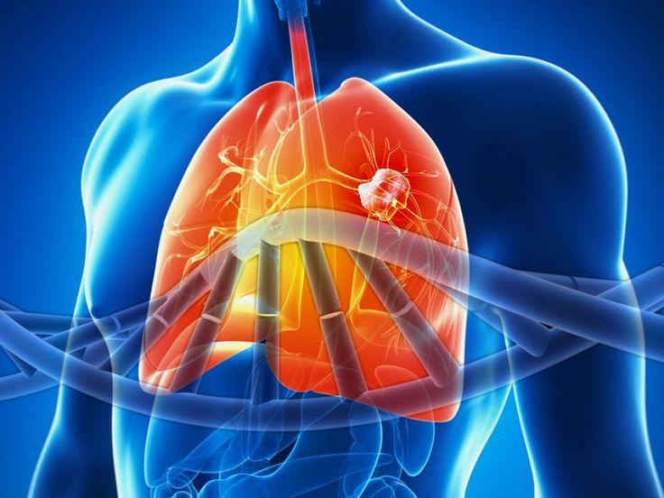 Κλινική εικόνα του καρκίνου του πνεύμονα