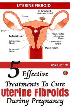 5 Effective Treatments To Cure Uterine Fibroids During Pregnancy