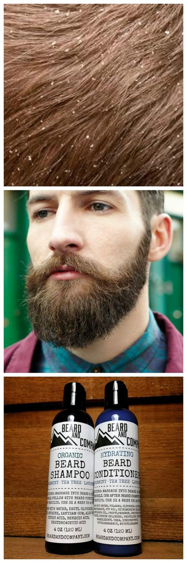 You Ve Let Your Beard Grow Wildly And Wonder Why It Itches E On Man Once Grown That Bad Boy To A Length Want S Time Get Serious