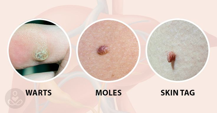 Hey guys, so do you have skin tags, skin moles or warts that you want to get rid of naturally? I'm going to explain why moles and warts appear on your body in the first place and how you can remove them naturally and avoid them from reappearing. There are