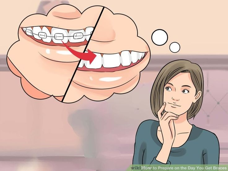 How to prepare on the day you get braces getting braces
