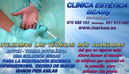 http://www.marbea.es/botox-en-marbella-clinica-estetica-marbella-tratamientos-de-botox-toxina-botulinica-para-la-sudoracion-excesiva-cabeza-repentina-hiperhidrosis-exceso-de-sudor-manos-pies-axilas-cabeza-bajo-los-se/