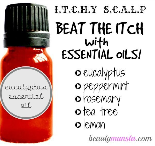 Five powerful essential oils for itchy scalp relief + how to use them safely and effectively to get rid of that itch once and for all! [ LavHa.com ]