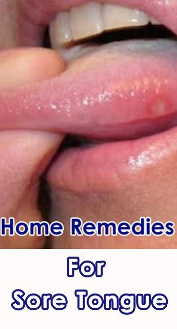 Home Remedies for Treating Sore Tongue | doTerra Oils ...