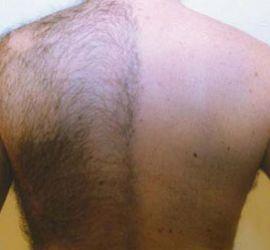 Möhring Ellipse A/S :: Permanent hårreduktion