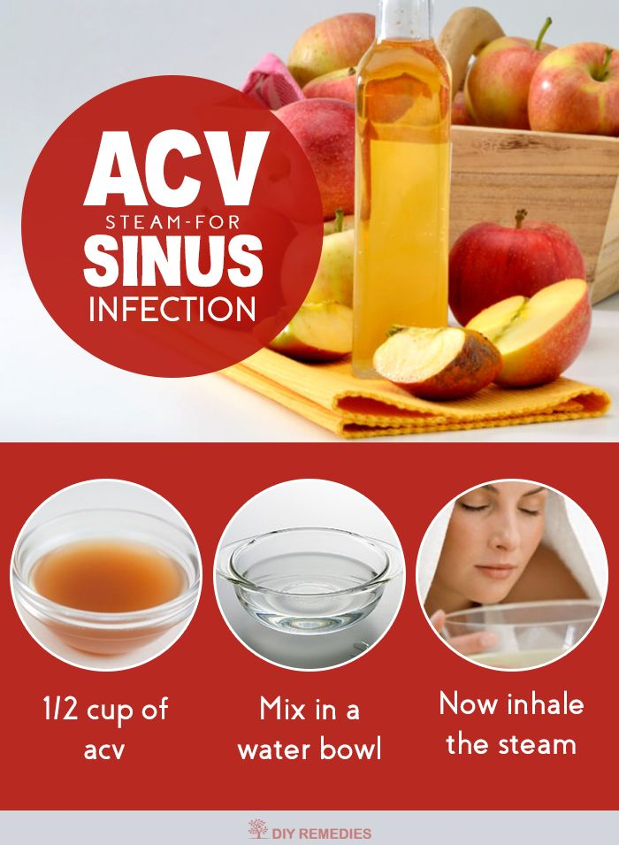 How To Clean Out Sinuses At Home Thecarpets Co