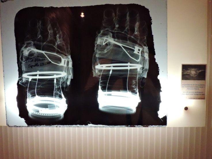 Museo Lunar - Radiografía de los guantes del astronauta Fred Haise, firmada por él.