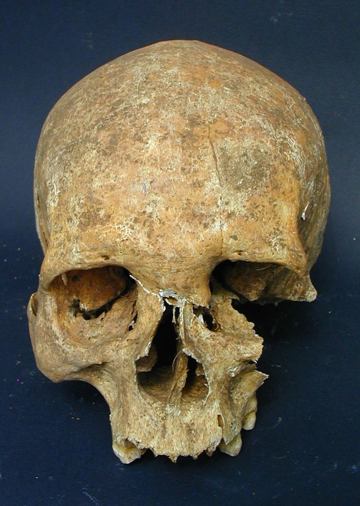 A skeleton recently unearthed in a medieval Italian cemetery bears the telltale signs of leprosy as well as what appears to be a sword wound.