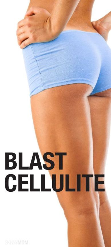 Best Exercises To Get Rid Of Cottage Cheese On Your Thighs
