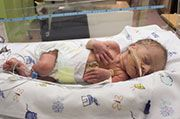 Hormone Might Help Preemies' Brains: A hormone used to reduce the need for blood transfusions might also protect the brains of premature babies, a new study suggests.