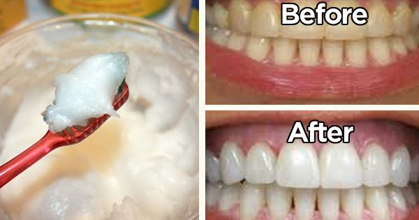 Coconut oil toothpaste 1. Prepare & clean a small jar with tight lid. 2. Mix 1 part Coconut Oil w/ 1 part Baking Soda. 3. Add 3-5 drops of food-grade essential oils t