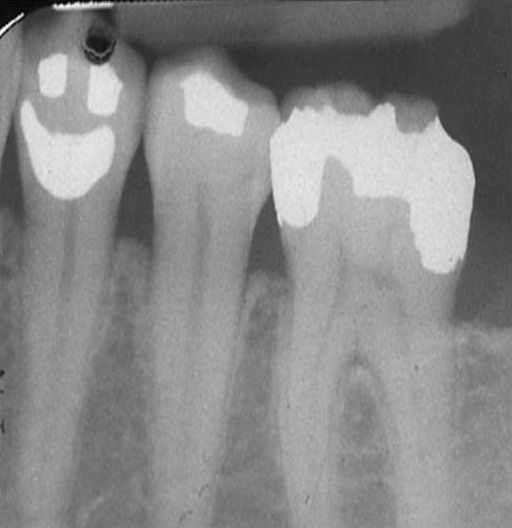 Can you tell on the x-ray which tooth is the happy?